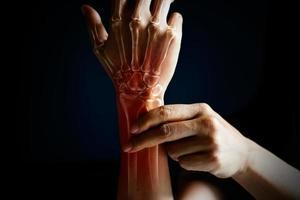 akuter Schmerz im Handgelenk einer Frau foto