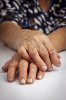 Hände der Frau von rheumatoider Arthritis deformiert foto