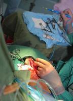 chirurgische Arbeit foto