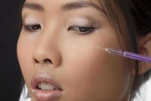 Botox-Injektion