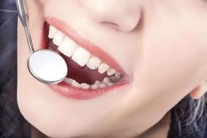 Zahnbehandlung mit Mundspiegel der jungen kaukasischen Frau foto
