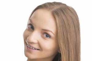 Gesichtsnahaufnahme des kaukasischen Blonden mit Zahnklammern foto