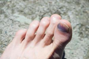kaukasischer Fuß mit blauem großen Zeh und Nagel nach Unfall