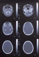 Nahaufnahme eines CT-Scans mit Gehirn foto