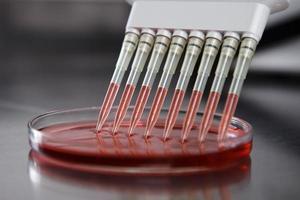 Pipette injiziert Flüssigkeit in eine Platte