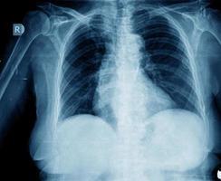 Röntgenaufnahme der Brust foto