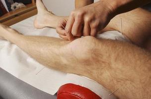 Akupunktur 1 foto