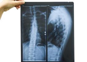 Der Arzt untersucht die Röntgenbilder eines Patienten foto