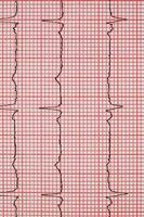 EKG foto