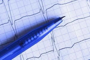 Kugelschreiber auf der EKG-Oberfläche foto