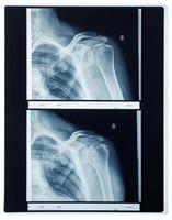 Röntgen-Schulterradiographie foto