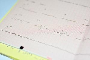 EKG-Diagramm foto