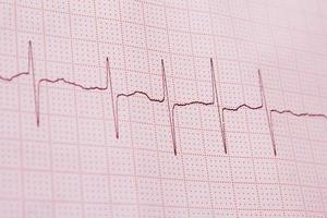 EKG-Druck foto
