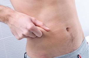 Kneifen der Haut an der Taille zum Test foto