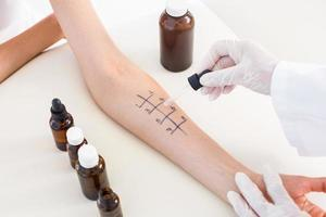 Arzt macht Hautstich-Test bei ihrer Patientin foto