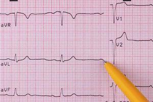 Elektrokardiogramm foto