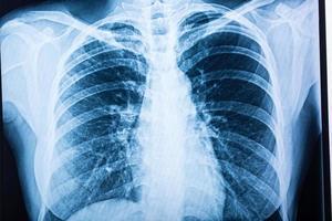 Röntgenfilm aus der Nähe foto
