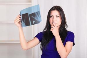 Mädchen schaut auf Röntgenaufnahme ihrer Handknochen foto