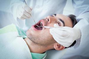 Nahaufnahme des Mannes, der seine Zähne untersuchen lässt foto