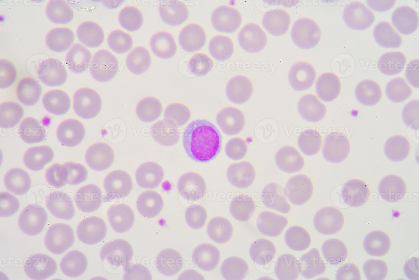 lymfocyt foto