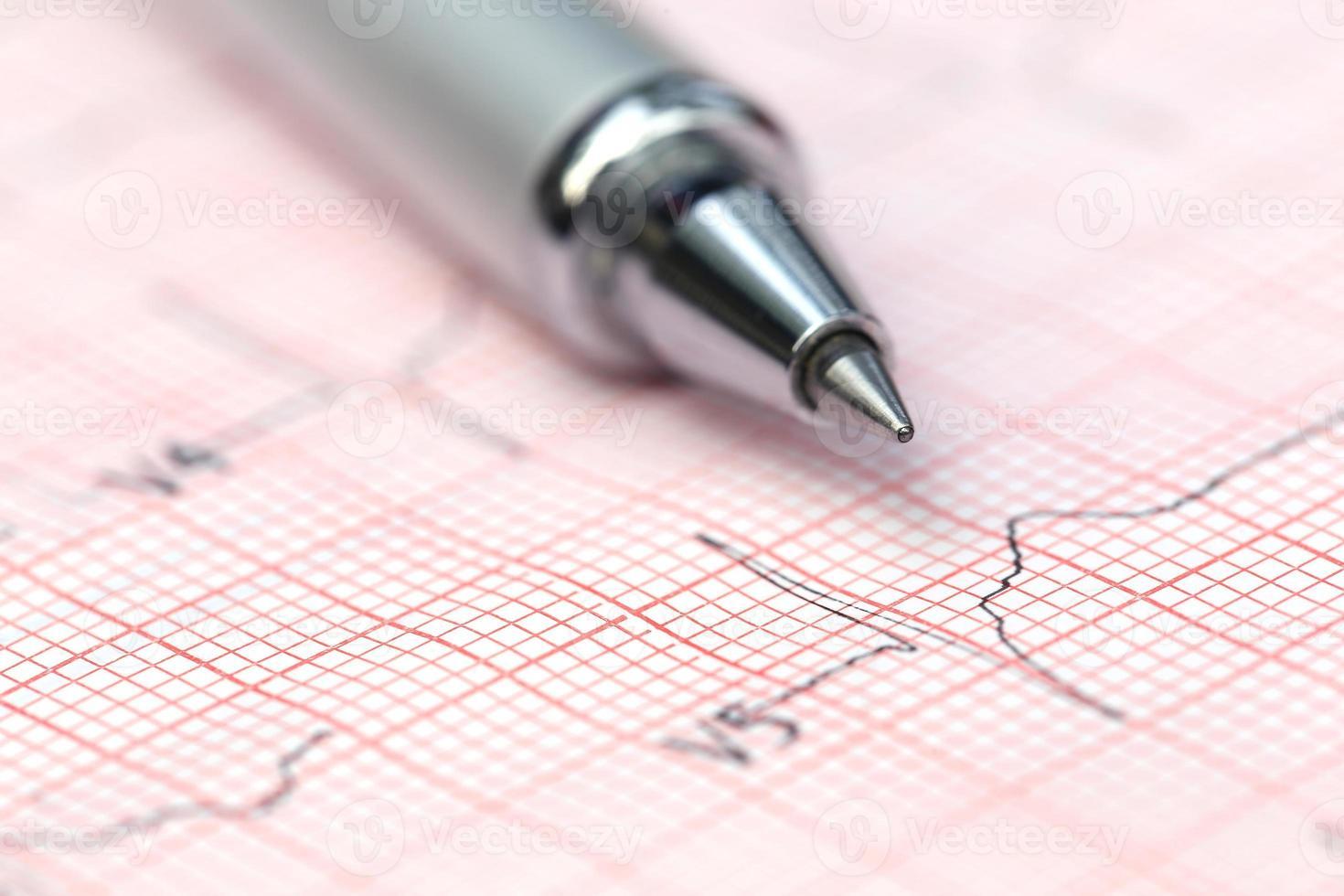elektrokardiograf med penna foto