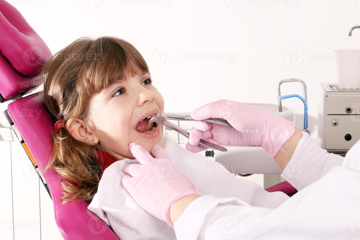 tandläkaren extraherade tanden liten flicka med en tång foto
