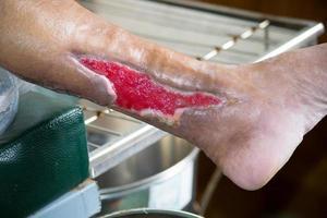 förband klippt sår vid benet foto