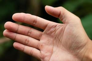 närbild av en hand med en blåsor
