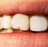 närbild av en flisig tand foto
