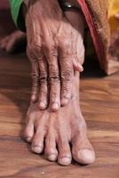äldre kvinna som lider av smärta i led foto