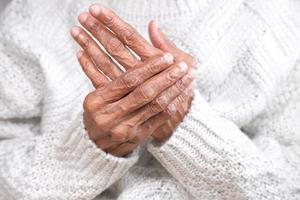 äldre kvinna som lider av handvärk på nära håll foto
