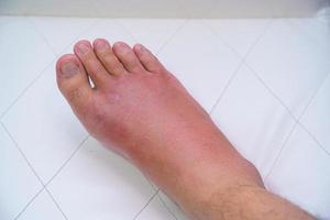 närbild av en gammal mans sårade högra fot foto