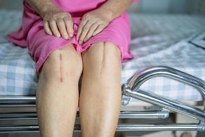 asiatisk senior eller äldre gammal dam kvinna patient visar hennes ärr kirurgisk total knäledsersättning sutur såroperation artroplastik på sängen på vårdsjukhusavdelningen hälsosamt starkt medicinskt koncept foto