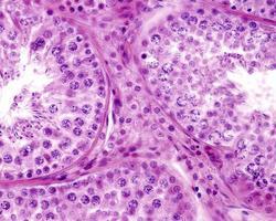 testikel leydig celler foto