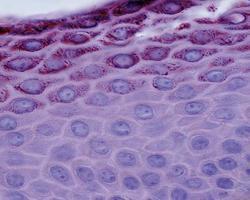 epidermis stratum spinosum och granulosum foto