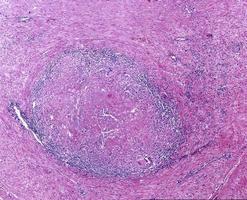 tuberculosis granuloma langhans cell foto