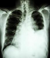 film bröst röntgenbild upprätt visar pleural effusion vid vänster lunga på grund av lungcancer foto