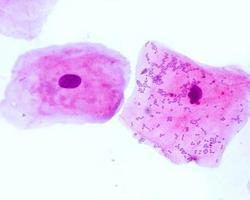 skivepitelceller foto