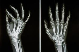 film röntgenbild visar ben av mänskliga händer foto