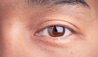 närbild av asiatisk kvinna blinkande ögon och små fräknar i hennes vackra ansikte. foto