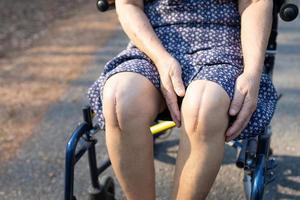 asiatisk senior eller äldre gammal damkvinnapatient visar hennes ärr kirurgiskt totalt knäledsbyte sutur såroperation artroplastik på säng i vårdsjukhusavdelningen hälsosamt starkt medicinskt koncept. foto
