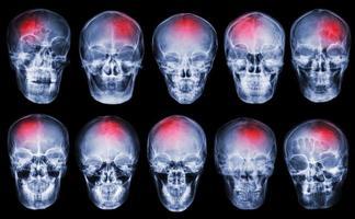 stroke. cerebrovaskulär olycka. uppsättning filmröntgenskalle foto