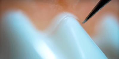 koncept tandvård foto