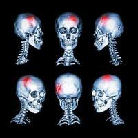 CT-skanning och 3D-bild av huvud och livmoderhals foto