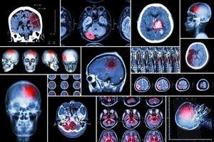 uppsättning av hjärnsjukdomar foto