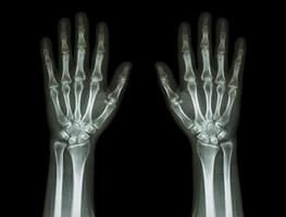 röntgenhänder, framifrån foto