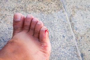 snittat blodigt sår på en mans fot foto