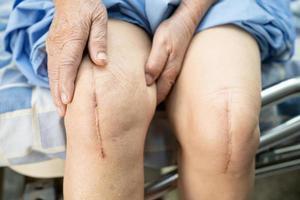 asiatisk senior kvinna patient visa hennes ärr kirurgiska totala knäleden foto