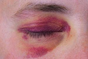 mänskligt öga med en lila blåmärke foto
