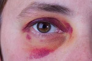 mänskligt öga med ett stort blåmärke foto